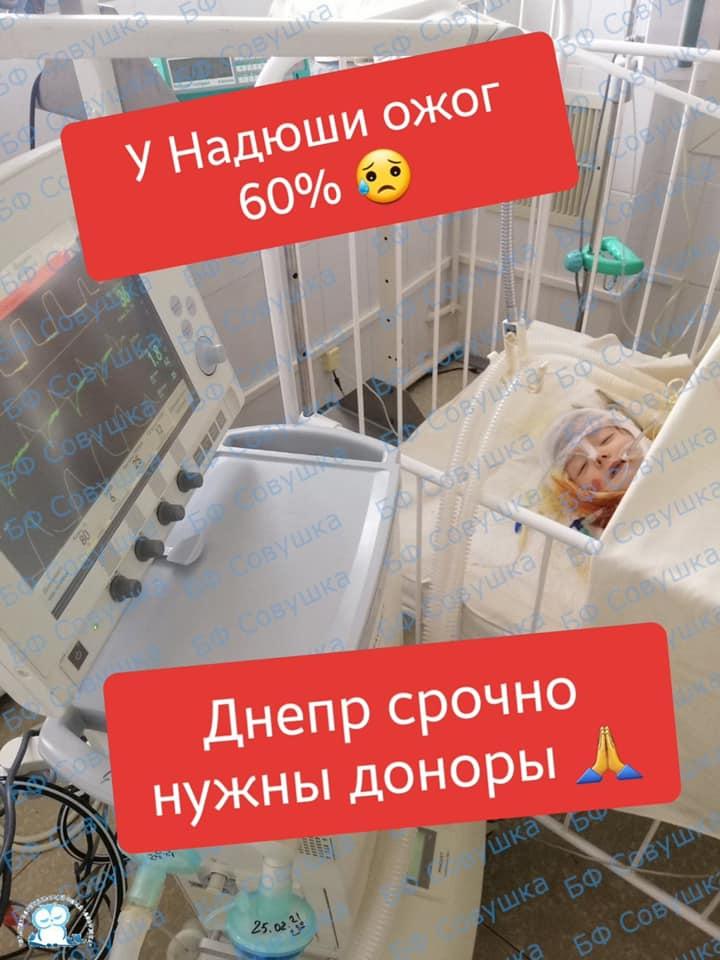 В Днепре спасают малышку из Марганца с 60% ожогов   Прихист